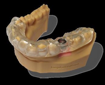Шаблоны с опорой на зубы